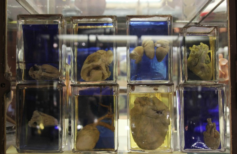 Bocaux d'organes conservés.